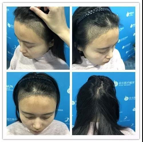 广州植发手术危险吗?