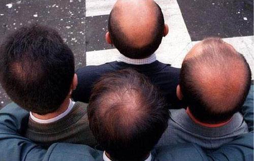 广州种植头发让你自信露出头发