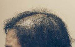 NAT美学植发专治头发稀疏问题