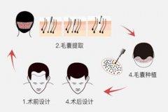 种植发际线会有后遗症吗?