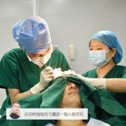 植发手术需要做多久